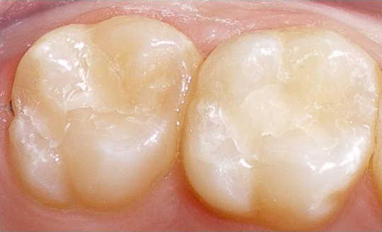 Cosmetic dentistry services dr sebastian your huntington beach new natural looking white fillings made from a composite solutioingenieria Choice Image