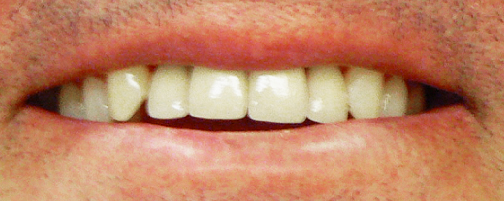 cosmetic-dentistry-services-after
