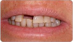 Before Immediate Denture