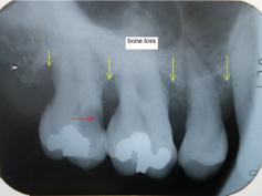 bone_loss