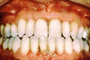 gum-disease-huntington-beach
