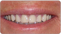 immediate-Dentures-after