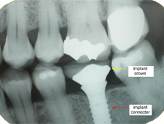 This x-ray shows a finished implant crown and connector.